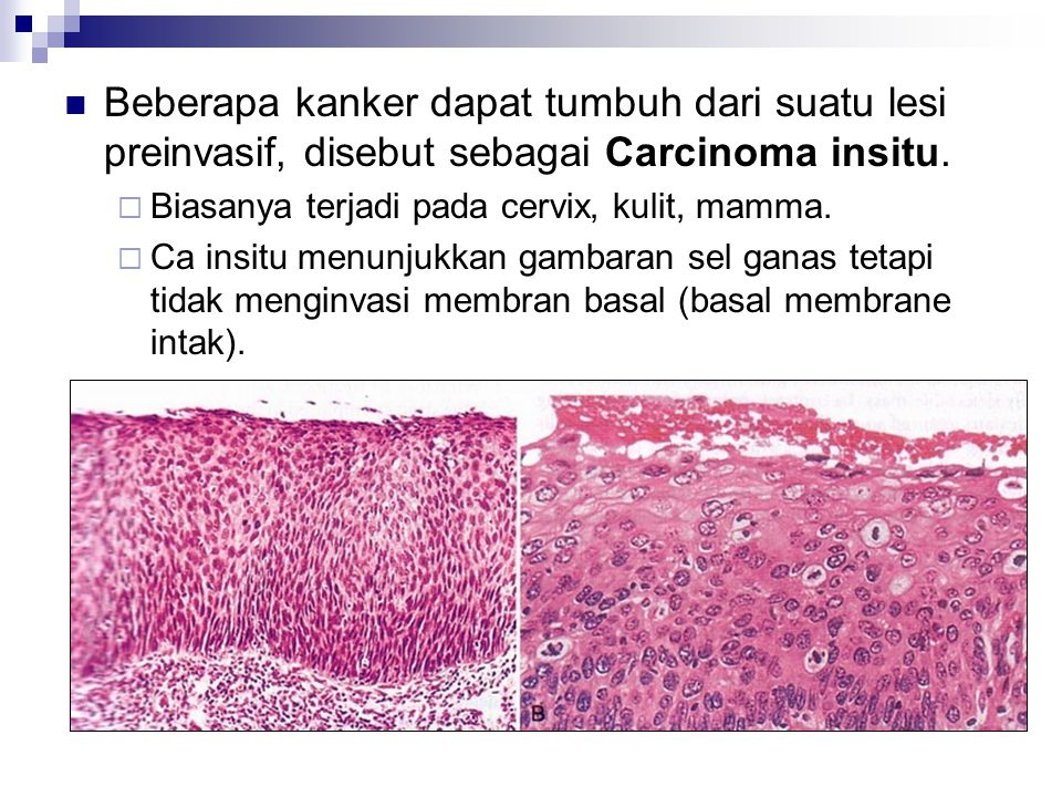 Beberapa kanker dapat tumbuh dari suatu lesi preinvasif, disebut sebagai Carcinoma insitu.