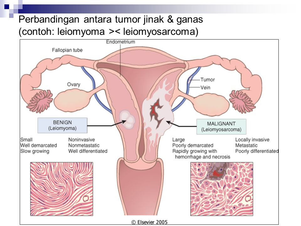 Perbandingan antara tumor jinak & ganas (contoh: leiomyoma >< leiomyosarcoma)