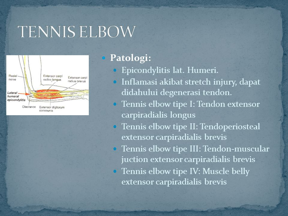 TENNIS ELBOW Patologi: Epicondylitis lat. Humeri.