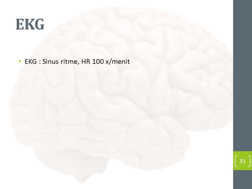 EKG EKG : Sinus ritme, HR 100 x/menit