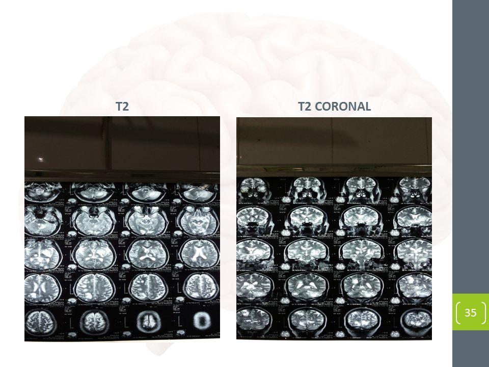T2 T2 CORONAL