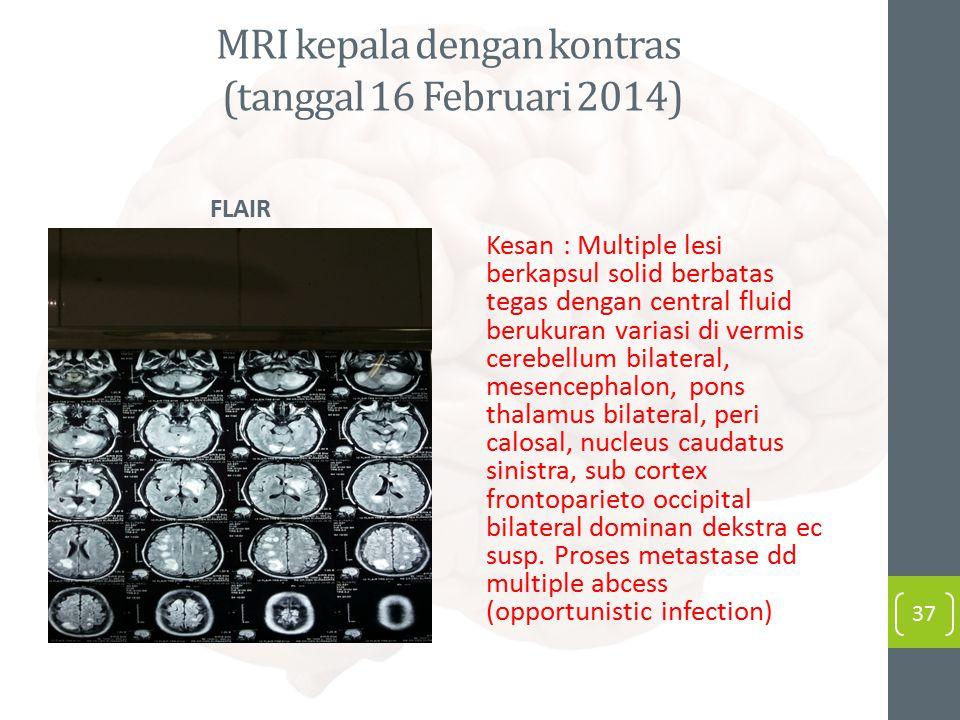 MRI kepala dengan kontras (tanggal 16 Februari 2014)