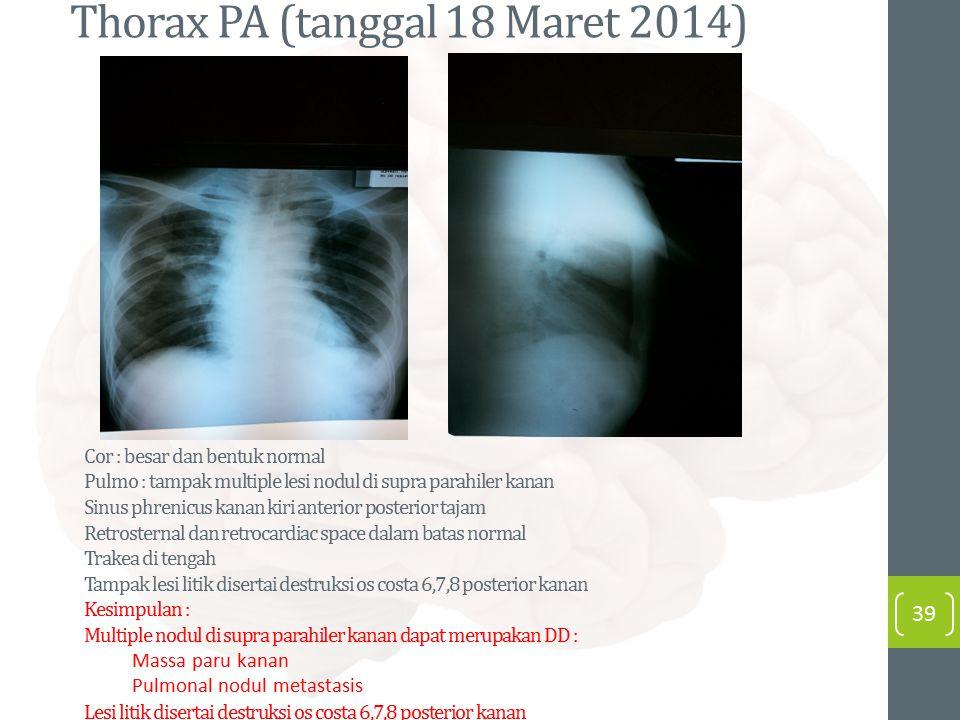 Thorax PA (tanggal 18 Maret 2014)