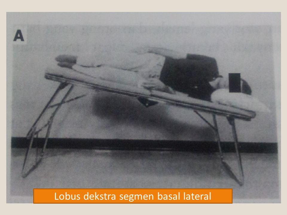 Lobus dekstra segmen basal lateral