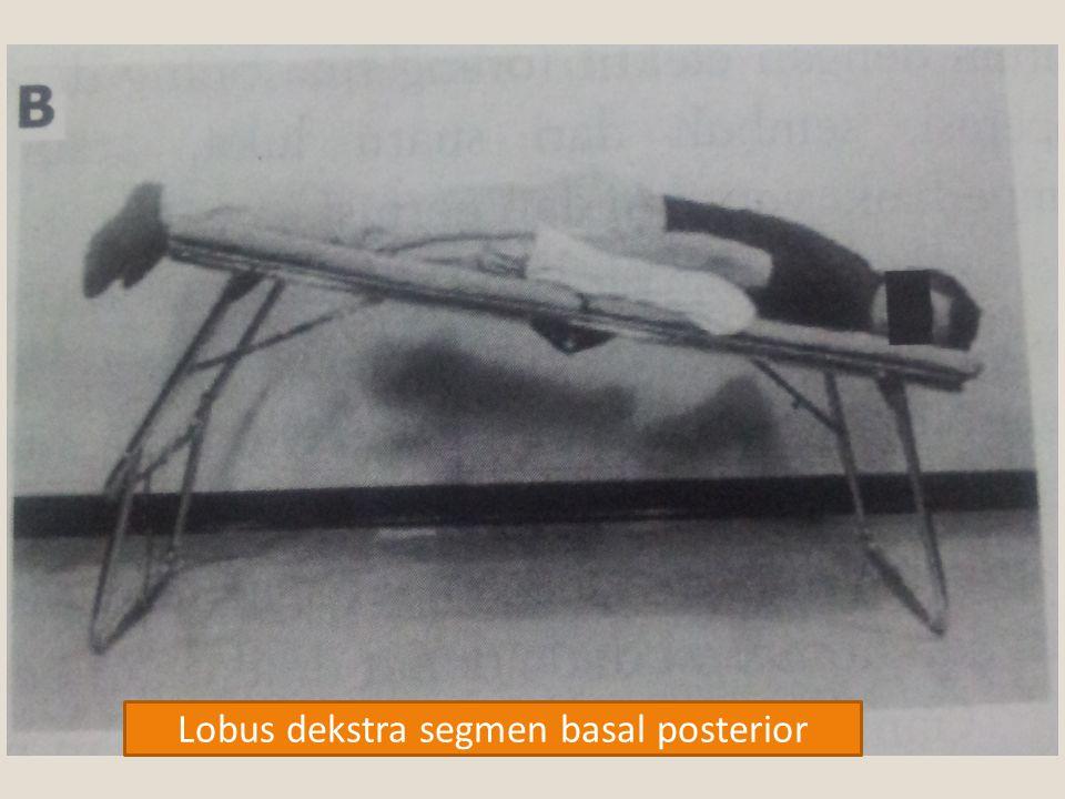 Lobus dekstra segmen basal posterior