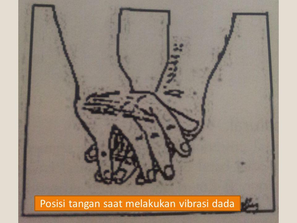 Posisi tangan saat melakukan vibrasi dada