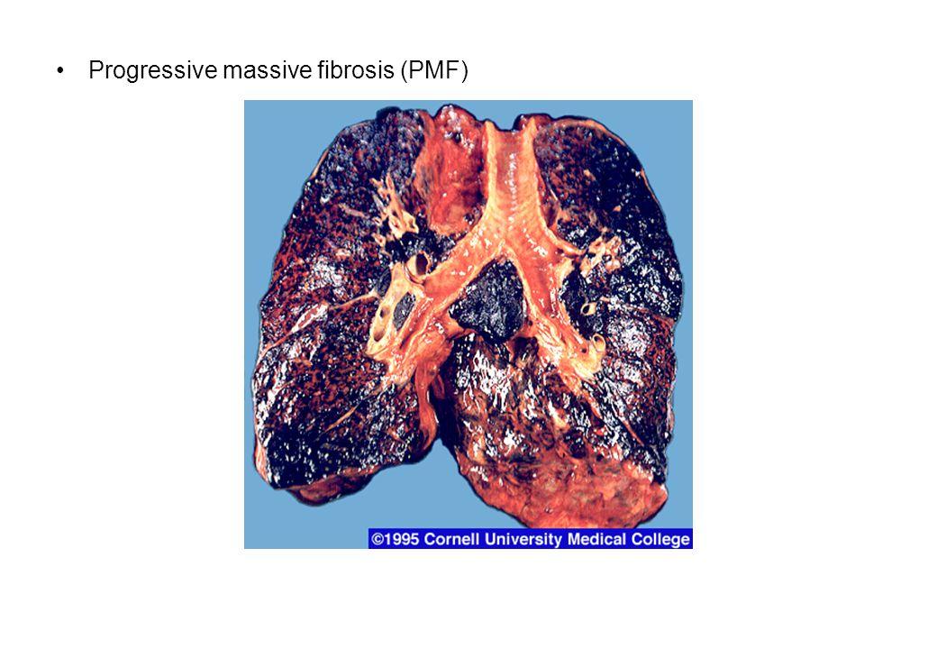 Progressive massive fibrosis (PMF)