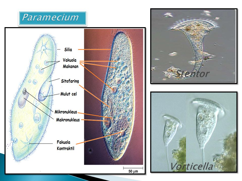 Paramecium Stentor Vorticella