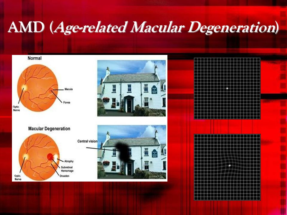 AMD (Age-related Macular Degeneration)