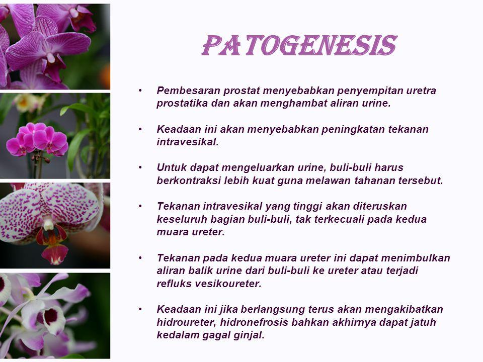 PATOGENESIS Pembesaran prostat menyebabkan penyempitan uretra prostatika dan akan menghambat aliran urine.