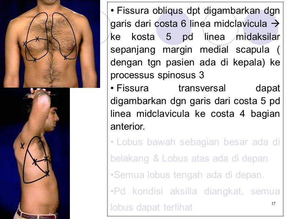 Fissura obliqus dpt digambarkan dgn garis dari costa 6 linea midclavicula  ke kosta 5 pd linea midaksilar sepanjang margin medial scapula ( dengan tgn pasien ada di kepala) ke processus spinosus 3