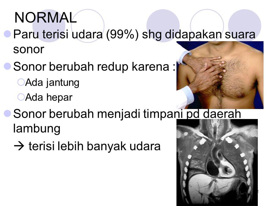 NORMAL Paru terisi udara (99%) shg didapakan suara sonor
