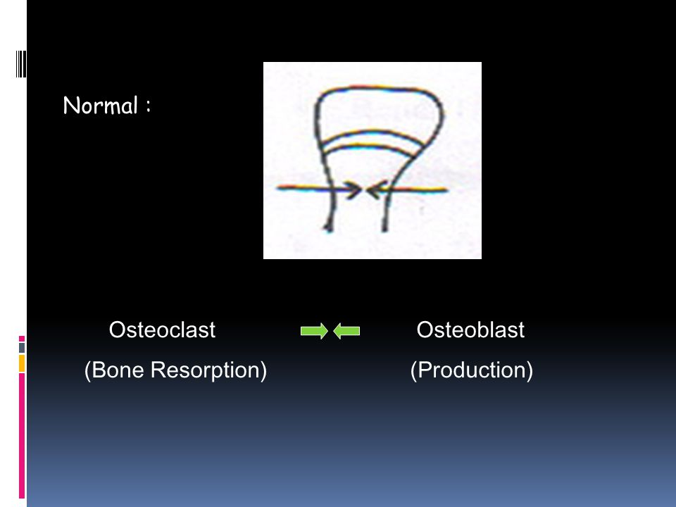 Normal : Osteoclast Osteoblast (Bone Resorption) (Production)