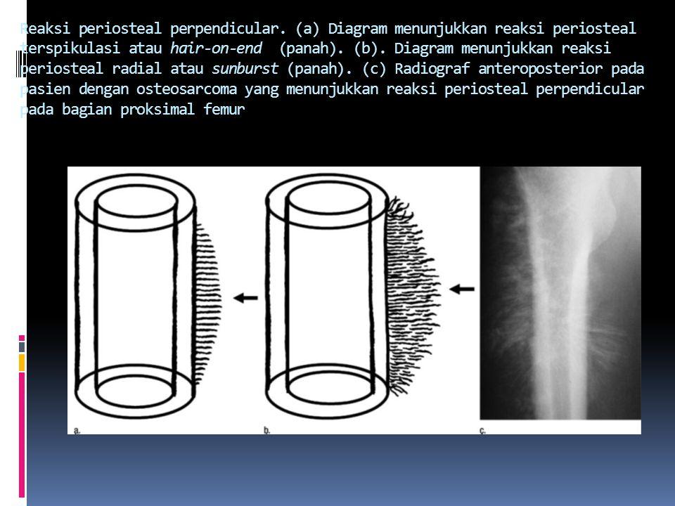 Reaksi periosteal perpendicular