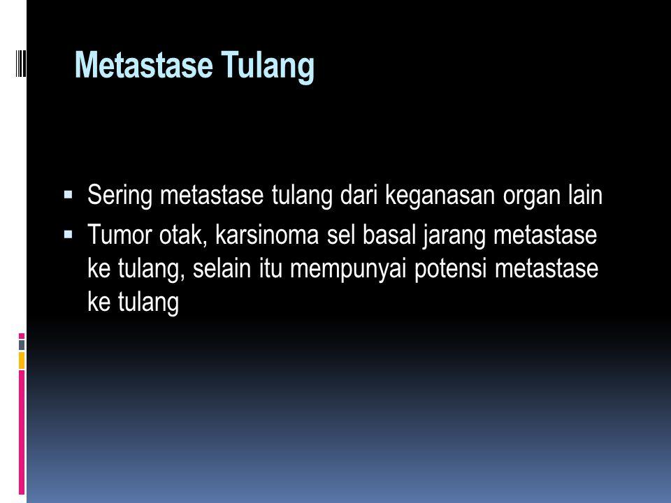 Metastase Tulang Sering metastase tulang dari keganasan organ lain