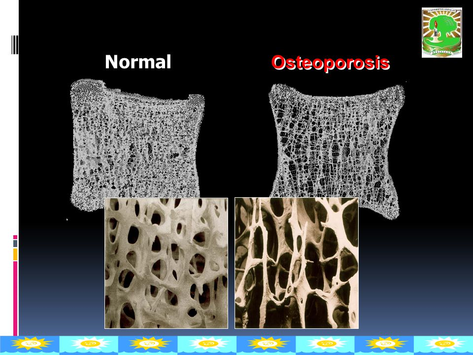 Vertebral body Normal Osteoporosis