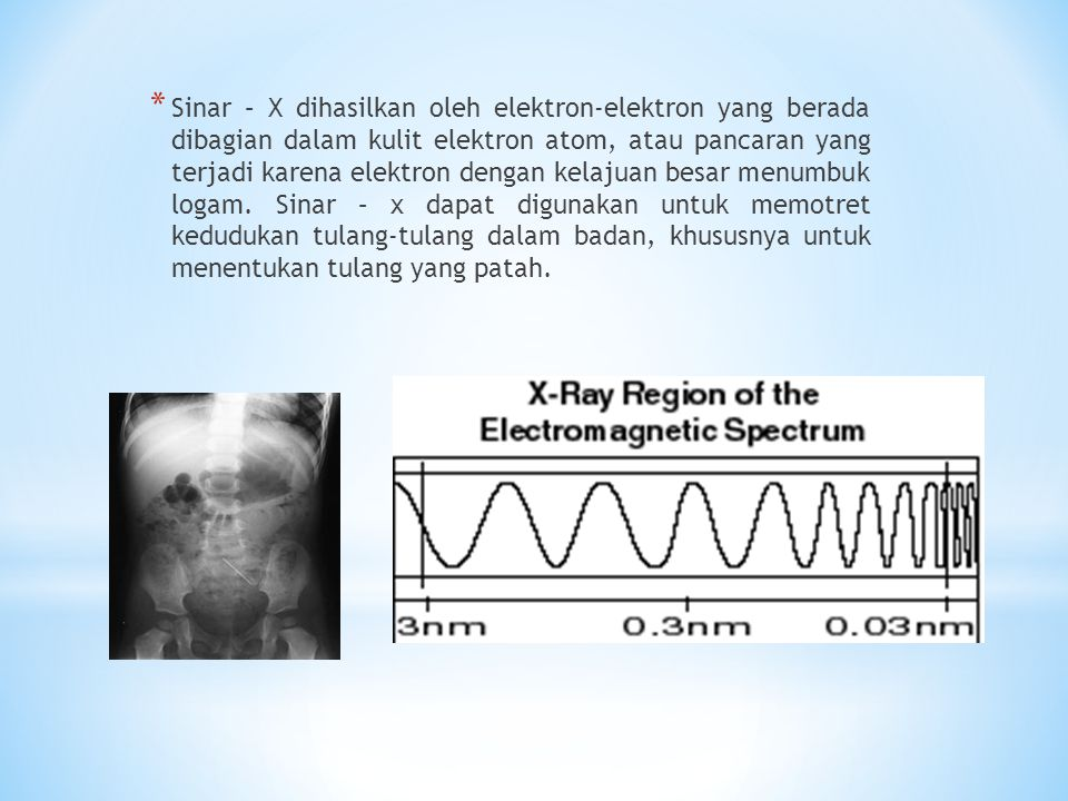 Sinar – X dihasilkan oleh elektron-elektron yang berada dibagian dalam kulit elektron atom, atau pancaran yang terjadi karena elektron dengan kelajuan besar menumbuk logam. Sinar – x dapat digunakan untuk memotret kedudukan tulang-tulang dalam badan, khususnya untuk menentukan tulang yang patah.