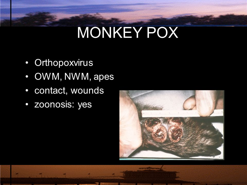 MONKEY POX Orthopoxvirus OWM, NWM, apes contact, wounds zoonosis: yes