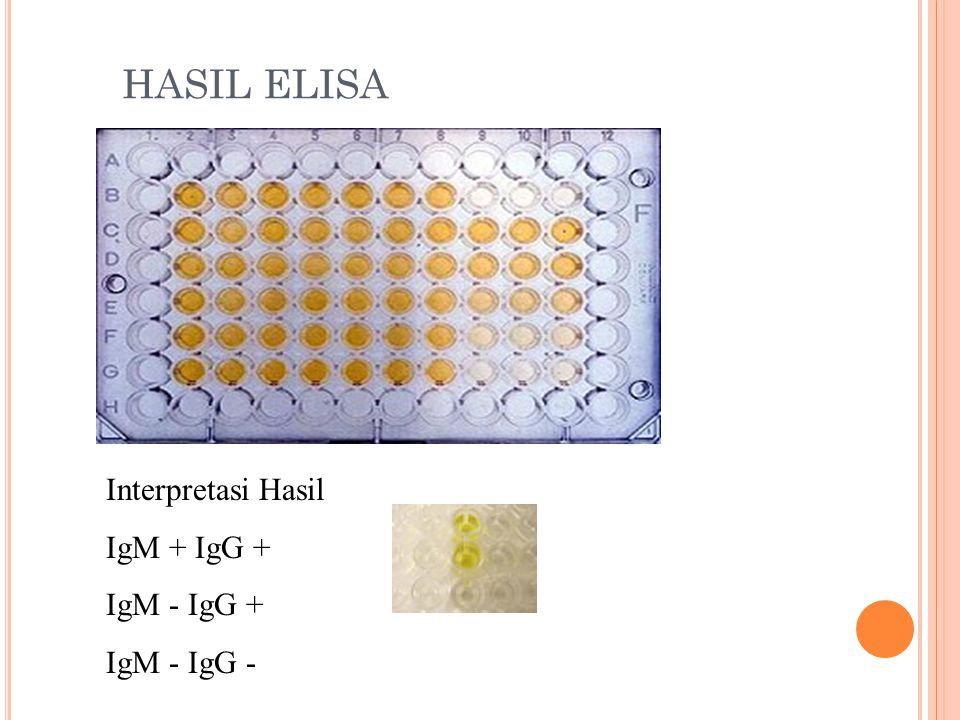 HASIL ELISA Interpretasi Hasil IgM + IgG + IgM - IgG + IgM - IgG -
