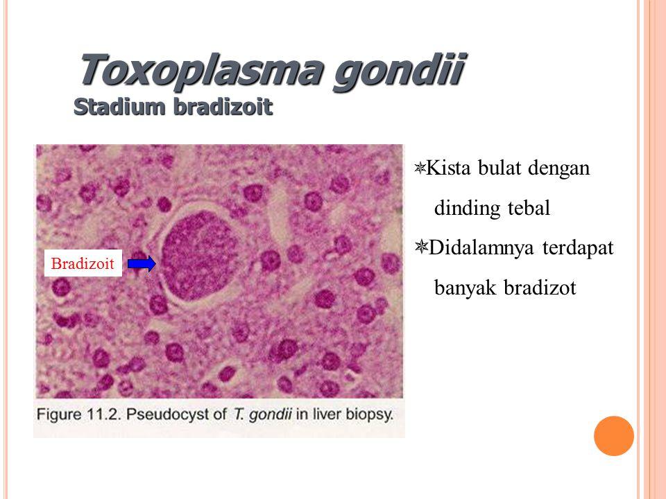Toxoplasma gondii Stadium bradizoit