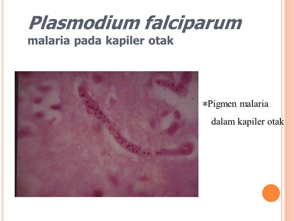 Plasmodium falciparum malaria pada kapiler otak