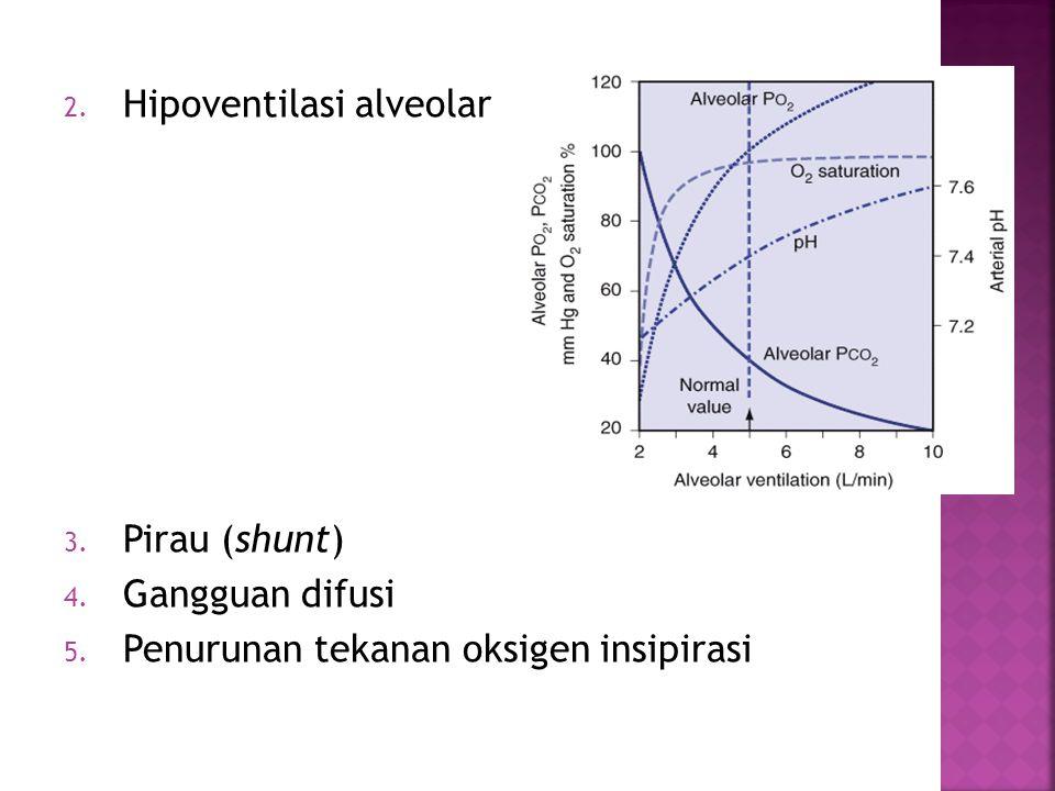 Hipoventilasi alveolar