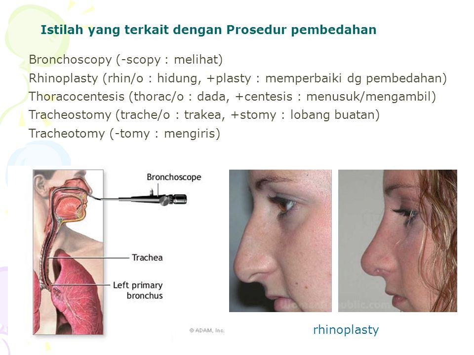 Istilah yang terkait dengan Prosedur pembedahan