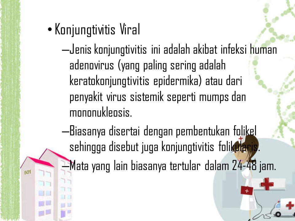 Konjungtivitis Viral