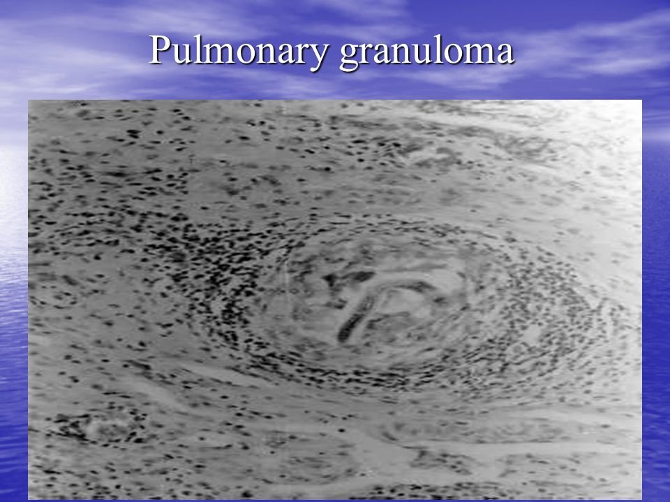 Pulmonary granuloma
