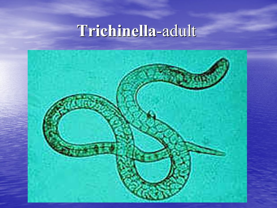 Trichinella-adult