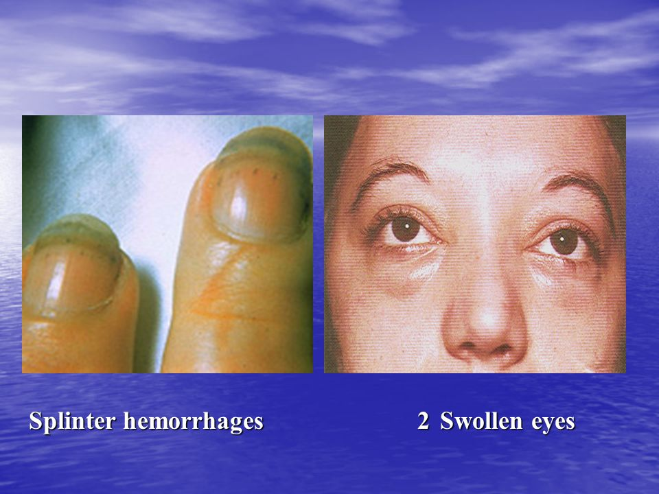 Splinter hemorrhages 2 Swollen eyes