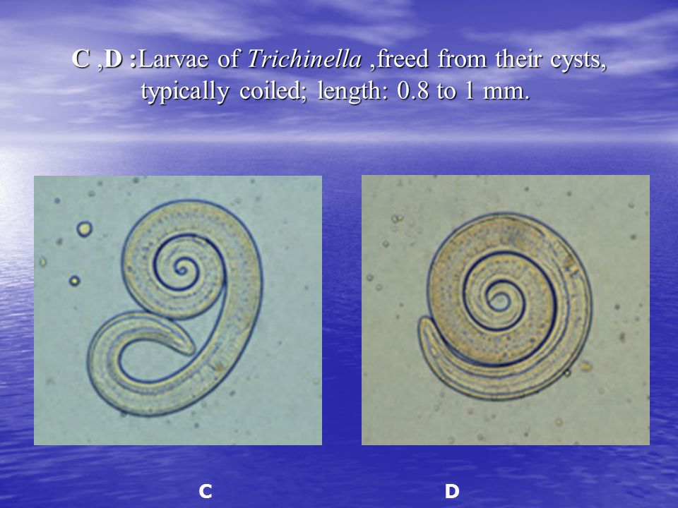 C, D: Larvae of Trichinella, freed from their cysts, typically coiled; length: 0.8 to 1 mm.