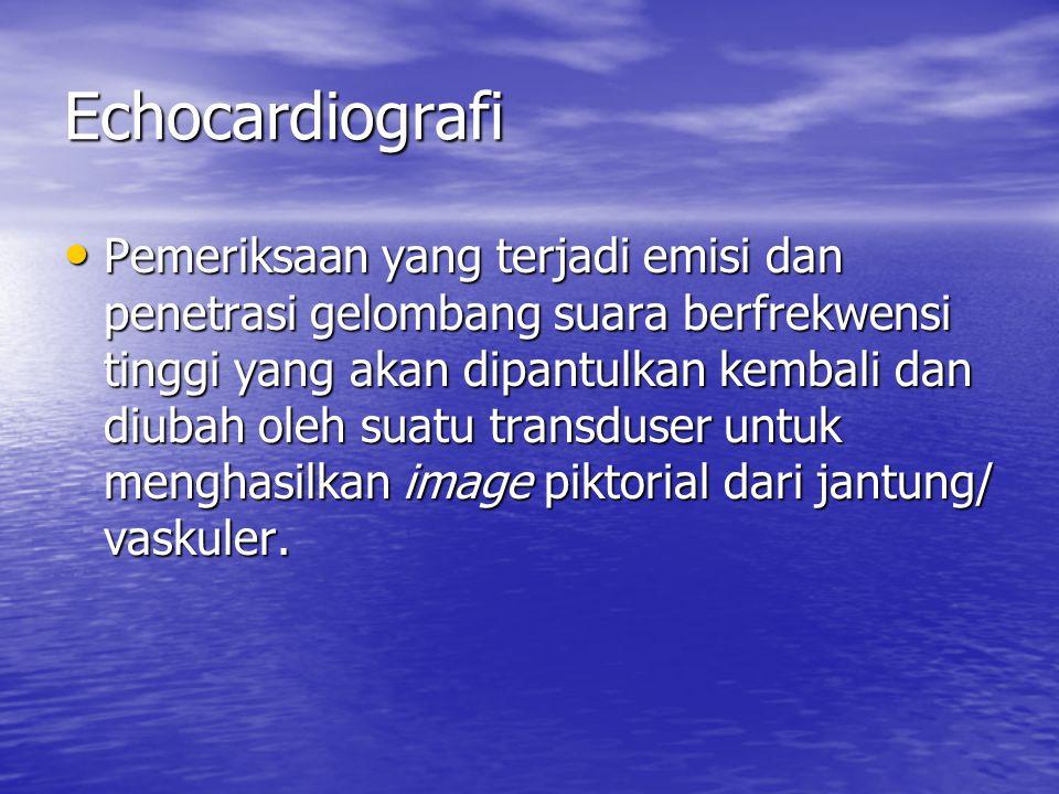 Echocardiografi