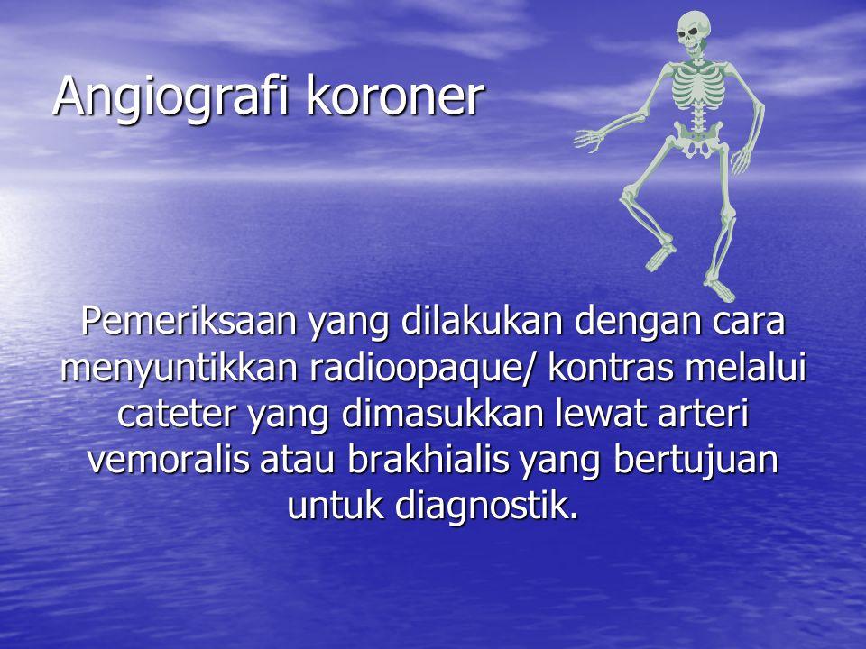 Angiografi koroner