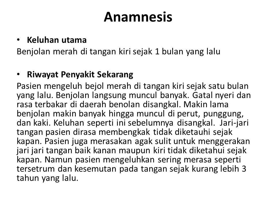 Anamnesis Keluhan utama