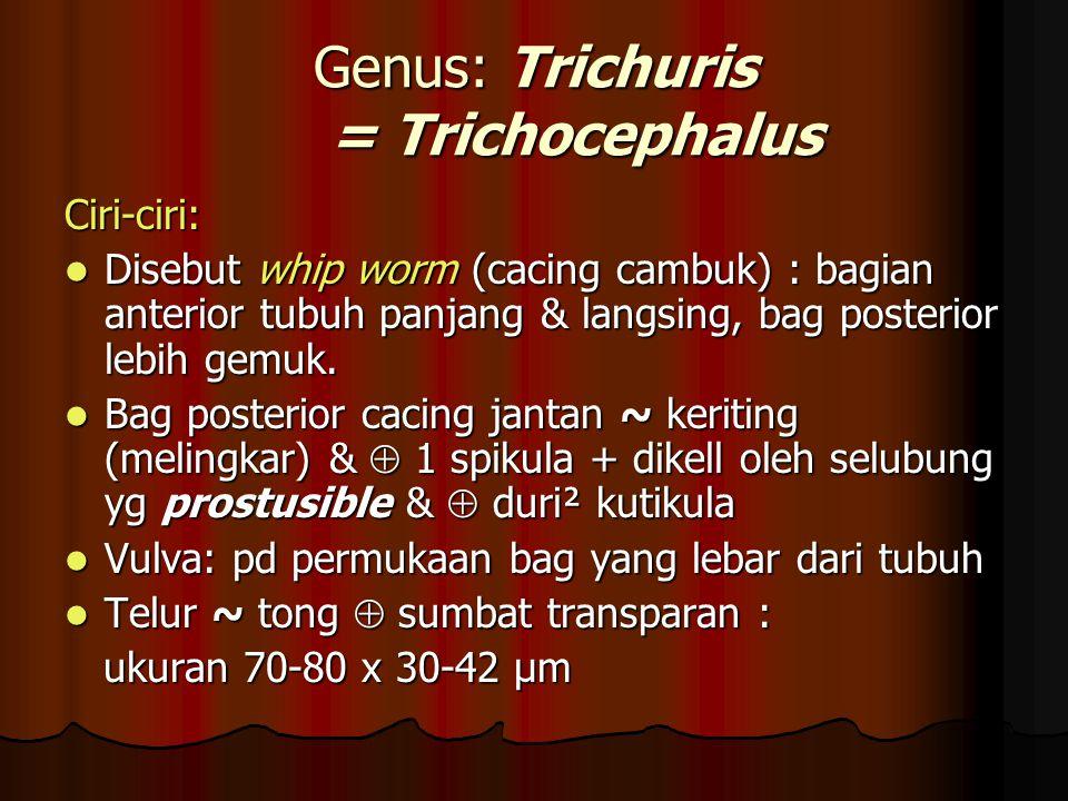 Genus: Trichuris = Trichocephalus