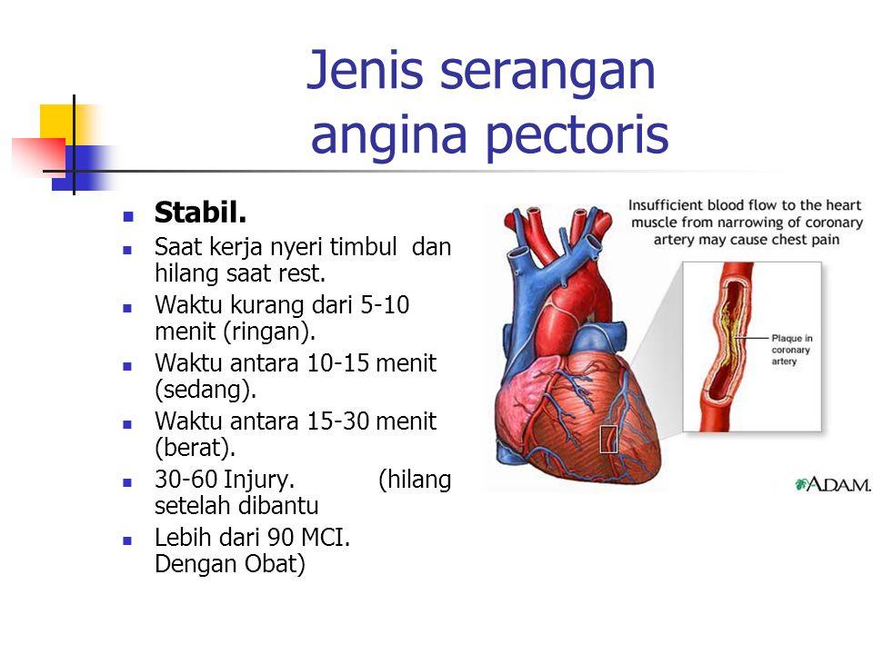 Jenis serangan angina pectoris