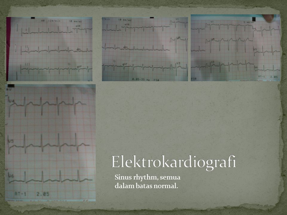 Elektrokardiografi Sinus rhythm, semua dalam batas normal.