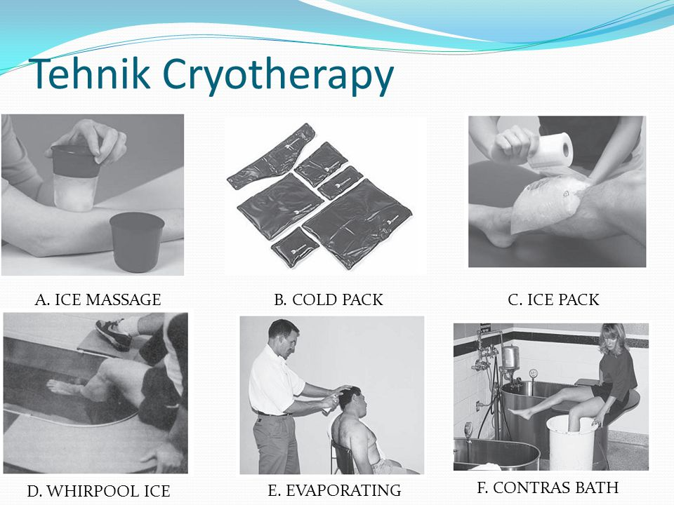 Tehnik Cryotherapy A. ICE MASSAGE B. COLD PACK C. ICE PACK