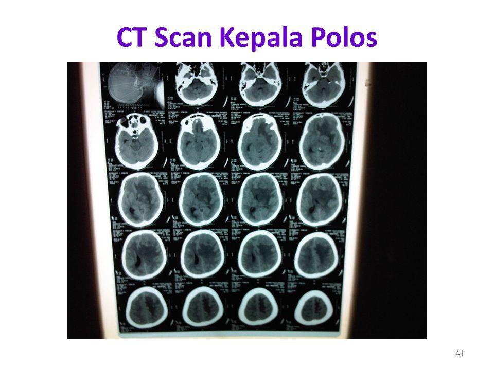 CT Scan Kepala Polos