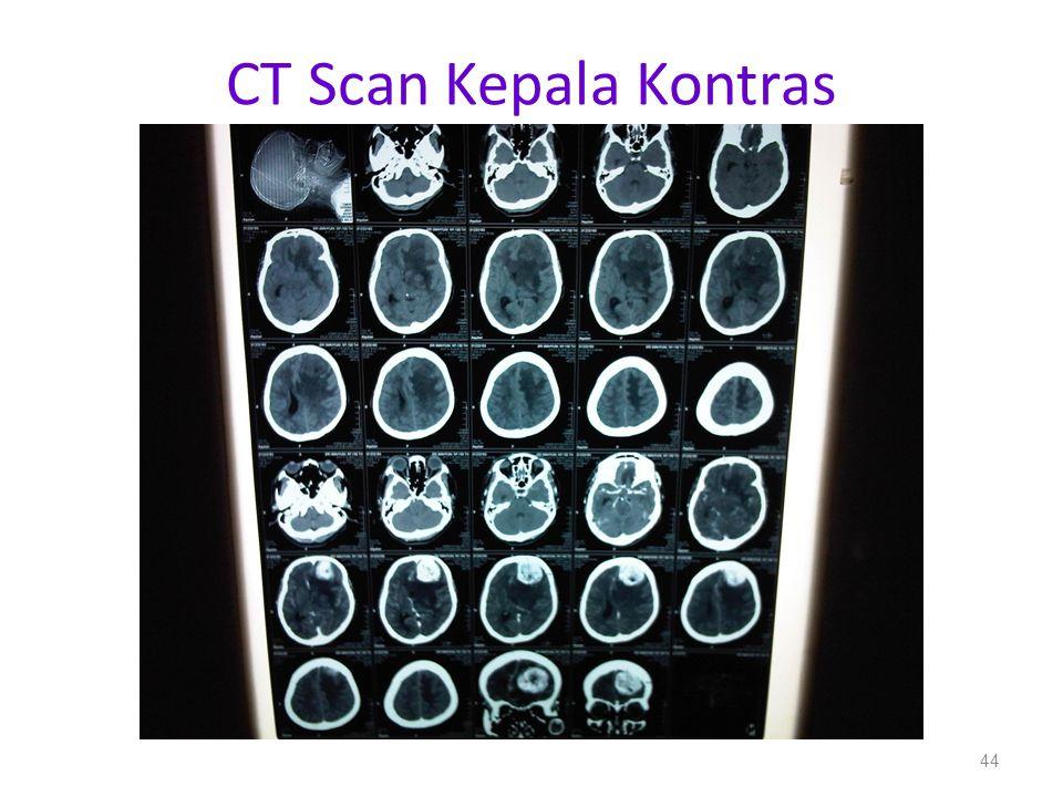CT Scan Kepala Kontras