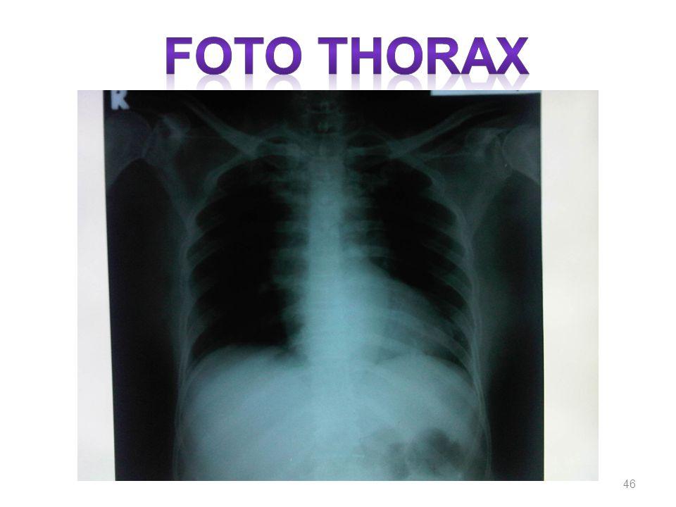 FOTO THORAX
