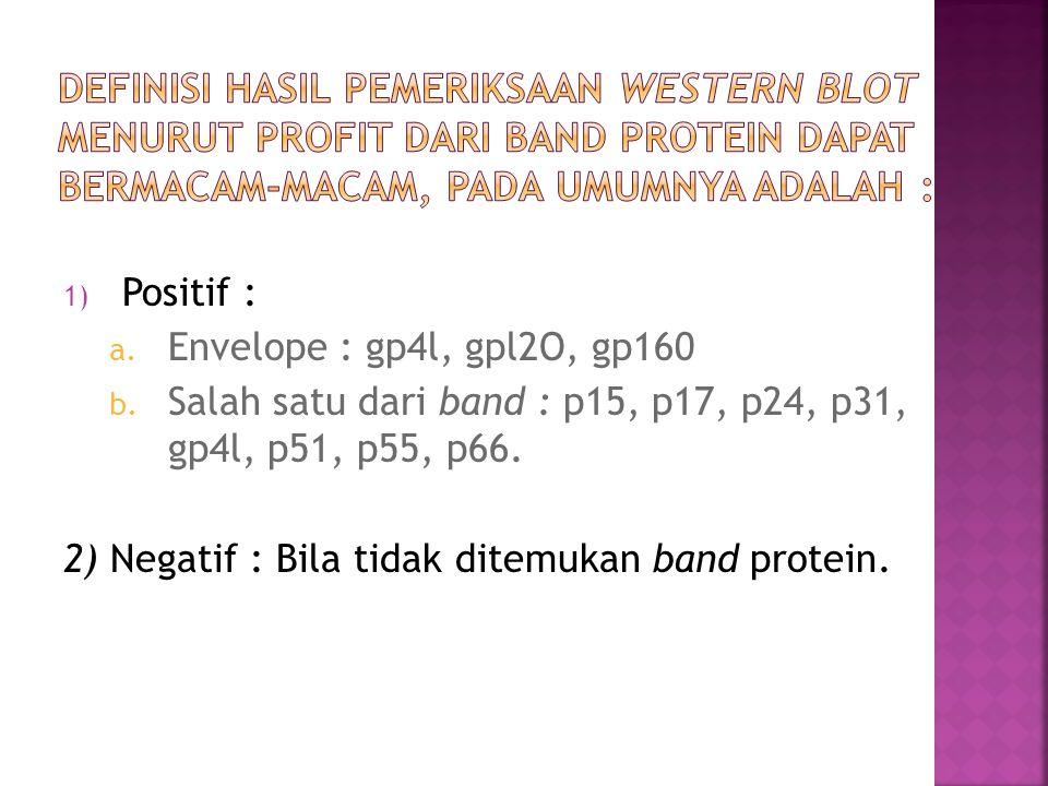 Definisi hasil pemeriksaan Western Blot menurut profit dari band protein dapat bermacam-macam, pada umumnya adalah :