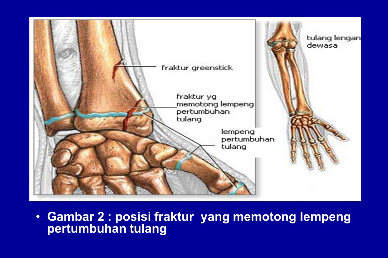 Gambar 2 : posisi fraktur yang memotong lempeng pertumbuhan tulang