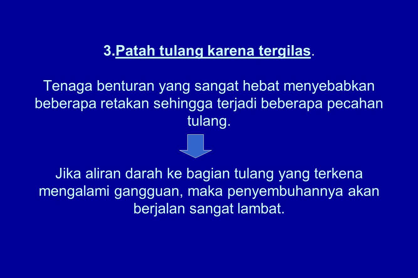 3. Patah tulang karena tergilas