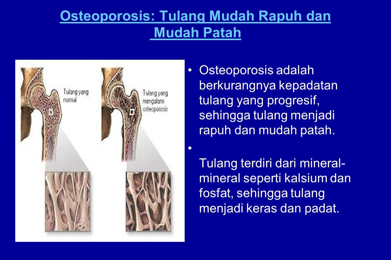 Osteoporosis: Tulang Mudah Rapuh dan Mudah Patah