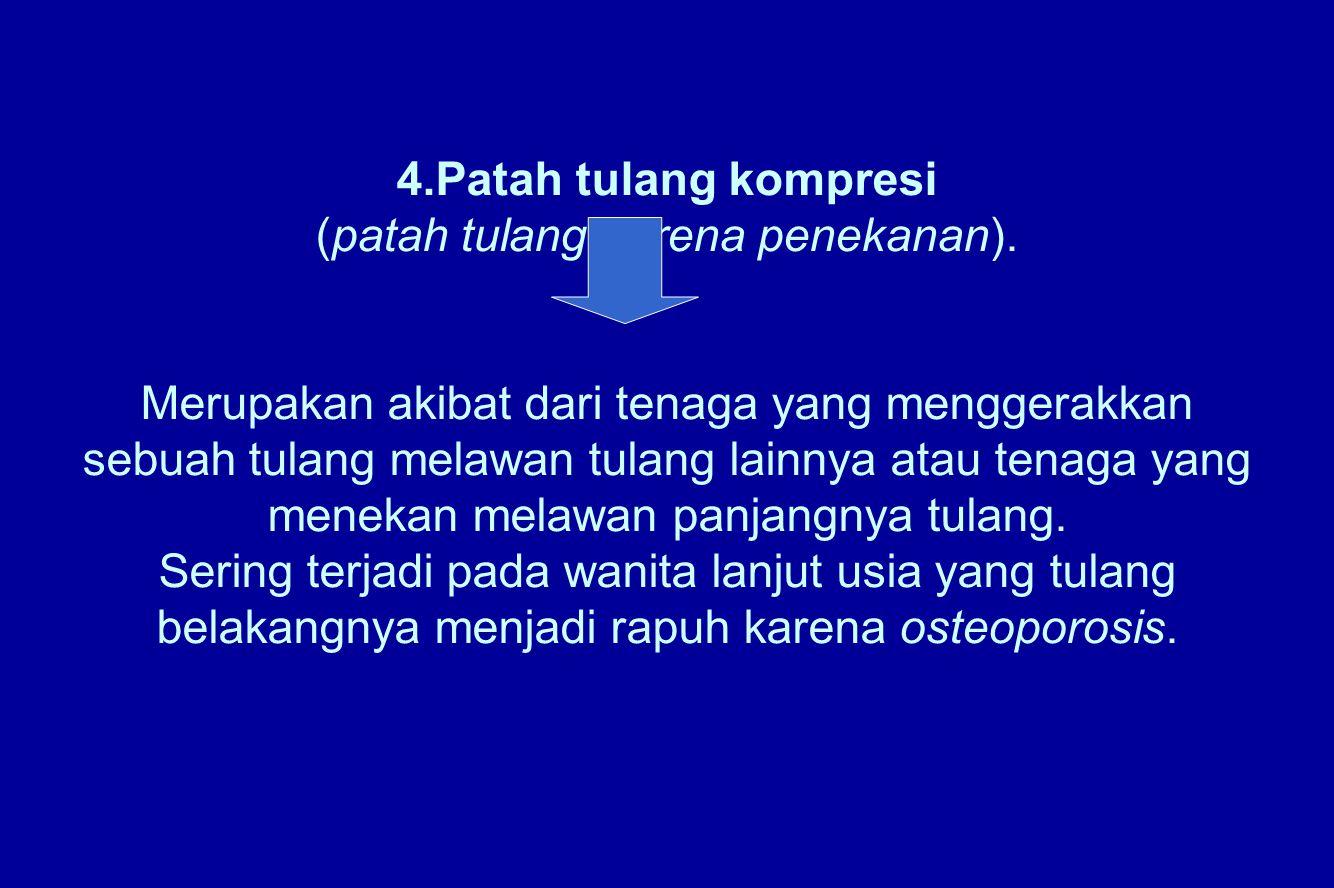 4. Patah tulang kompresi (patah tulang karena penekanan)