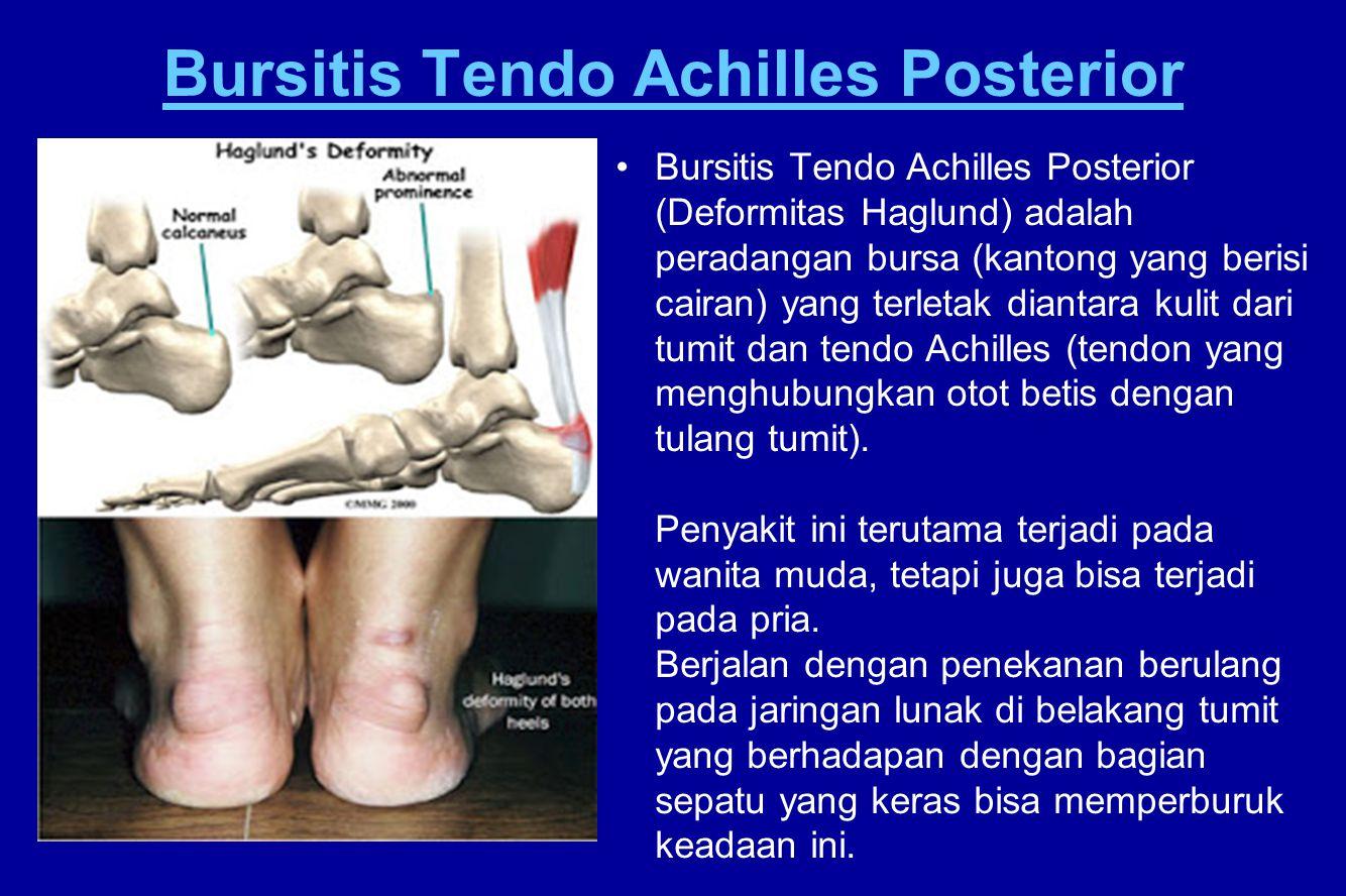 Bursitis Tendo Achilles Posterior