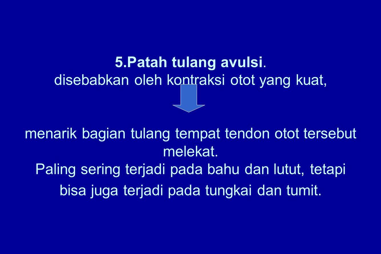 5.Patah tulang avulsi.