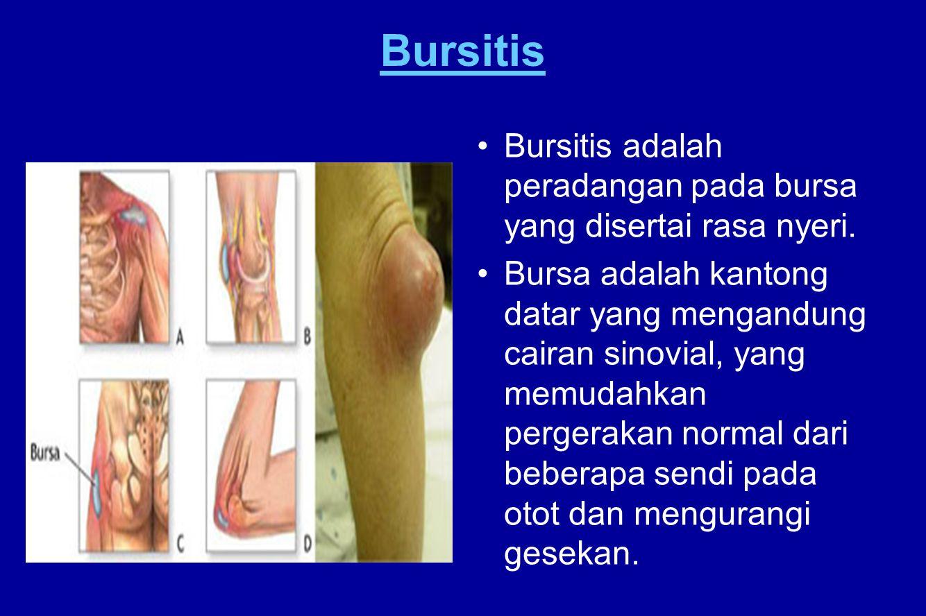 Bursitis Bursitis adalah peradangan pada bursa yang disertai rasa nyeri.